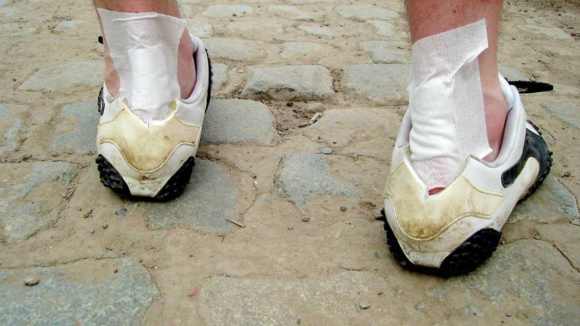 Geschundene Füße eines Pilgers.