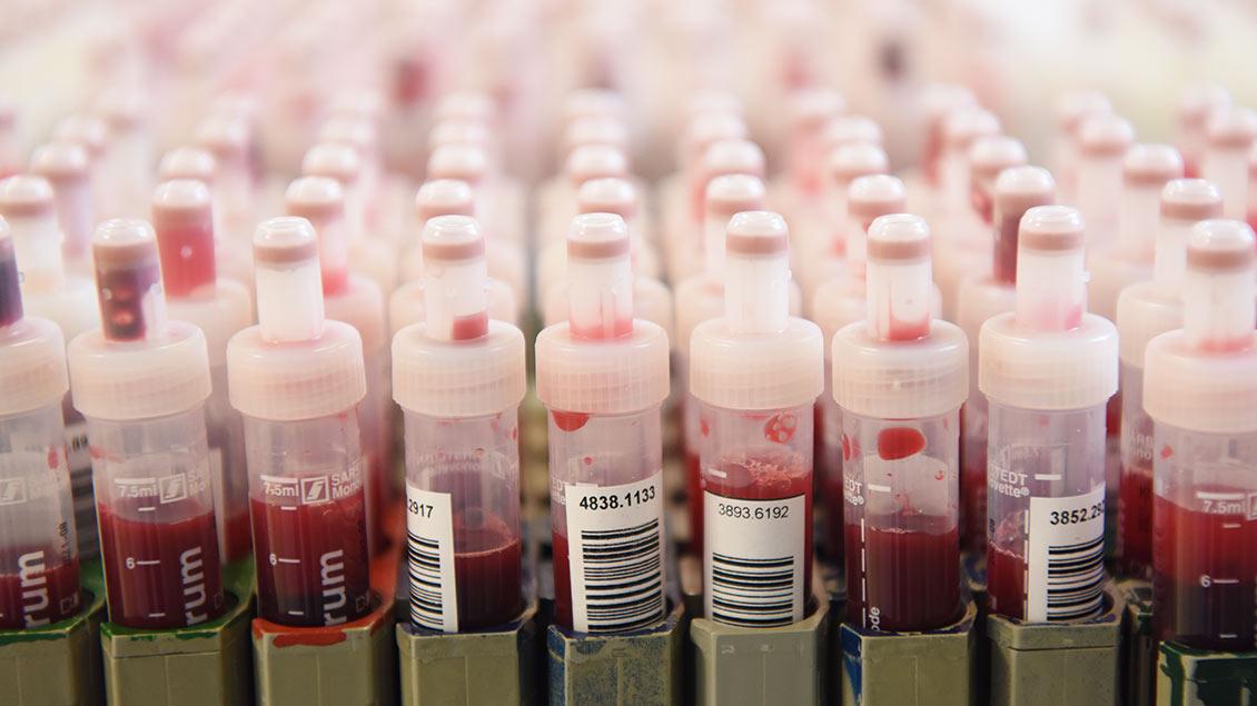 Zu sehen sind mehrere Bluttests in einem Labor.